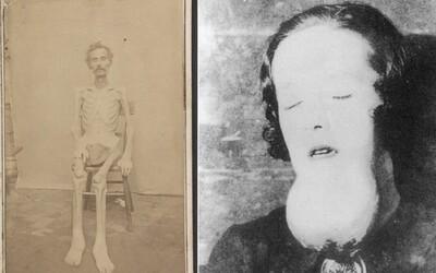 """""""Živá kostra"""" a žena, která žila 25 let v pokoji s vlastními výkaly. 10 nejděsivějších fotek z historie"""
