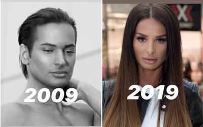 10 year challenge: Nikoho nezaujíma, ako si vyzeral pred 10 rokmi