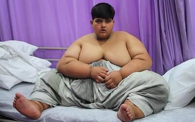 10-ročný 200-kilogramový chlapec je najtučnejším dieťaťom na svete. Bez pomoci nedokáže ani chodiť