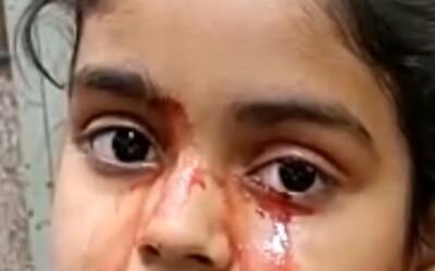 11-ročné dievčatko z Indie plače krvou. Jej matka je zúfalá, lekári sa nevedia zhodnúť na príčine ochorenia