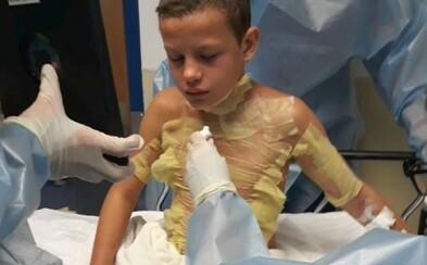 Dvanáctiletý chlapec si popálil tělo poté, co zkoušel internetovou výzvu Fire Challenge