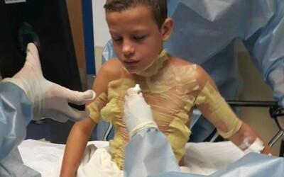 12-ročný chlapec si popálil telo po tom, čo skúšal internetovú výzvu Fire Challenge