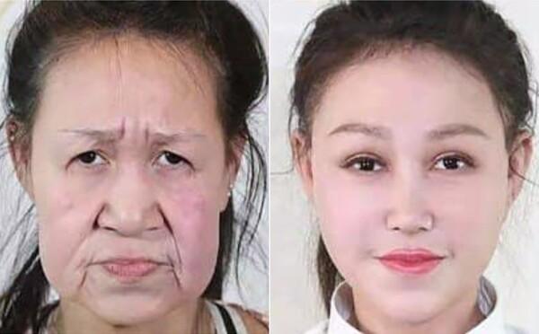 15-ročné dievča trpelo zriedkavou chorobou, kvôli ktorej vyzeralo ako starenka. Muselo podstúpiť operáciu