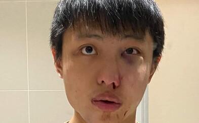 """23-ročného Singapurčana zbili do krvi: """"Tvoj koronavírus v našej krajine nechceme!"""""""