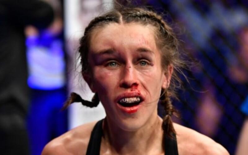Polská UFC bojovnice, jejíž obličej při posledním zápase otekl k nepoznání, se zotavila.