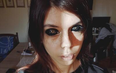25-ročná Alexandra po tetovaní očí oslepla. Jej tatérovi hrozia 3 roky väzenia