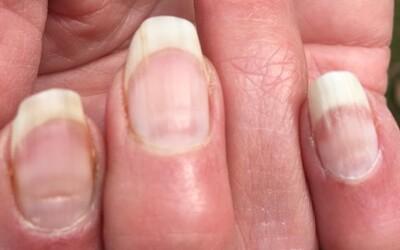 Vedci objavili ďalší následok nákazy koronavírusom: Máš aj ty covidové nechty?.