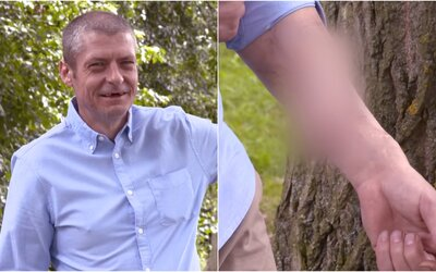 45-ročnému mužovi kvôli infekcii odpadol penis. Lekári mu na ruku prišili náhradný
