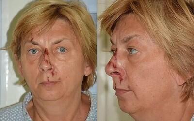 Na chorvátskom ostrove Krk našli ženu s výpadkom pamäti. Netuší, kto je a ako sa na ostrov dostala.