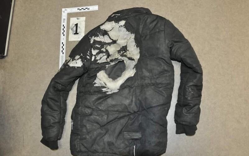 Iba 15-ročný mladík pri Vranove nad Topľou mal podpáliť 11-ročného chlapca. Vraj ho polial horľavinou a zapálil zápalkami.