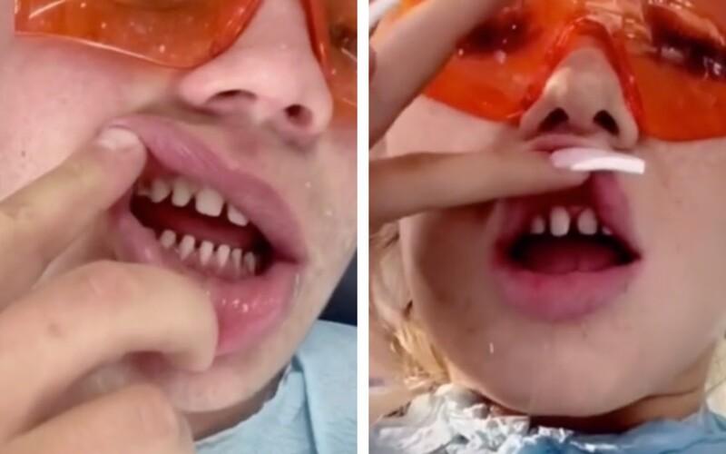 Mladí si vo veľkom orezávajú zuby, aby si na ne nasadili nové. Zubárka varuje pred zdravotnými problémami.
