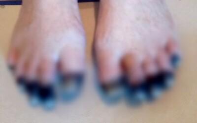Žena ve Walesu odmítá spát se svým mužem v jedné posteli. Bojí se, že se vzbudí vedle jeho odpadlého prstu.