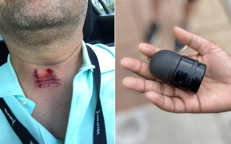 Policista v USA střelil reportéra během rozhovoru přímo do krku gumovým projektilem.