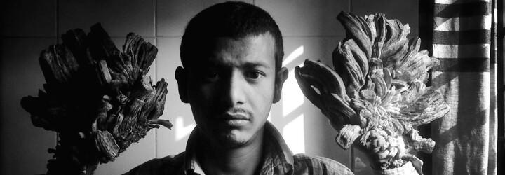 """""""Stromového muže"""" z Bangladéše po 16 operacích zbavili utrpení. Vzácná porucha kůže mu pořádně znepříjemňovala život"""