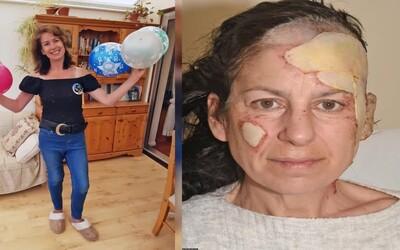 Chtěla si jen zapálit cigaretu, místo toho jí shořela část obličeje. Nešťastná nehoda jí způsobila popáleniny třetího stupně.