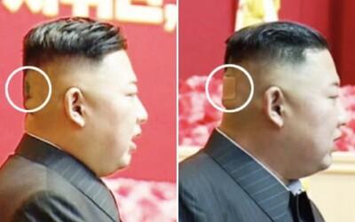 Záhadná náplast na hlavě Kim Čong-una přiměla svět spekulovat o jeho zdraví.
