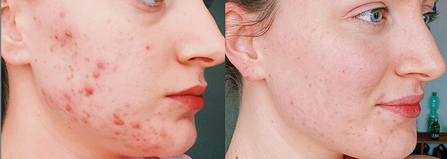 Acne Myth Busters: Sun Might Dry Your Pimples, But It Can Cause Even Bigger Problems