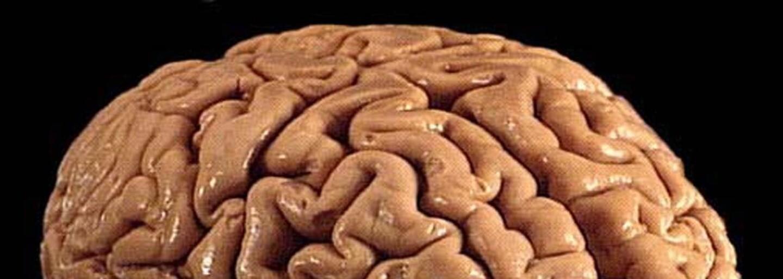 Ako funguje pamäť a spomínanie? Na jeden obraz z minulosti musí mozog vyvinúť obrovské množstvo námahy a ľahko ťa môže oklamať