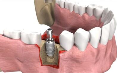 Ako prebieha inštalácia zubného implantátu? Detailná animácia ti to ukáže