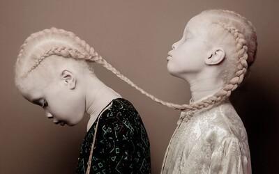 Albínske dvojčatá Lara a Mara vtrhli do modelingu ako búrka. Exotická unikátnosť už zaujala aj svetové značky