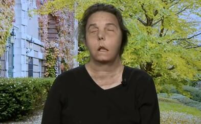 Američanke transplatovali tvár, tá sa teraz opäť rozpadá a odumiera