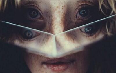 Ani vzácná deformace obličeje ji nezastavila v cestě za modelingovou kariérou. Ilka navzdory rozštěpu obličeje boří stereotypy o kráse