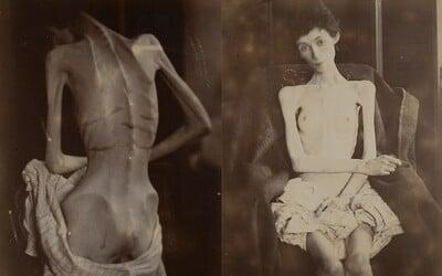 Anorexia je výsledkom zmien v myslení a vnímaní vlastného tela, na ktorej sa značne podieľa aj rodinné prostredie