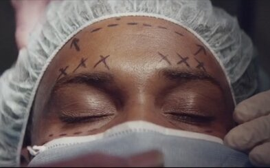 A$AP Rocky podstoupil plastickou operaci v hollywoodském hip-hopovém příběhu Everyday