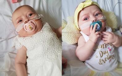 Bábätko, ktoré mohol zabiť aj obyčajný bozk od mamy. Arriella sa narodila s mimoriadne vzácnou diagnózou bez imunity
