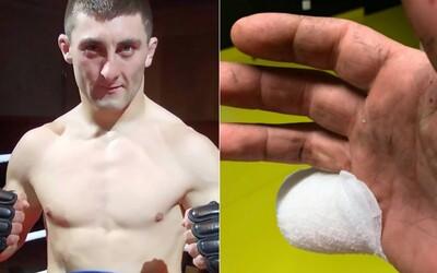 Bojovníkovi MMA odsekl kombajn kus malíčku. K lékaři šel až poté, co dokončil sklizeň