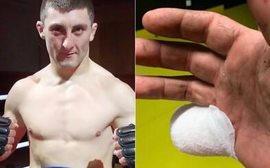 Bojovníkovi MMA odsekol kombajn kus malíčka. Prácu najprv dokončil, až potom šiel ku lekárovi, zápasiť bude naďalej