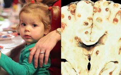 Bolesti hlavy a epileptické záchvaty spôsoboval mozog plný vajíčok pásomnice. Dlhé mesiace nevedeli, čo sa s dievčatkom deje
