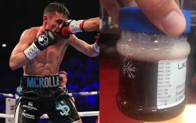 Boxer šokoval fanúšikov fotkou vzorky moču odobratej po zápase. Štandardnú žltkastú farbu by si hľadal márne