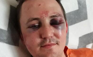 Brata zavraždeného novinára Jána Kuciaka zmlátili do krvi. Útok by nemal súvisieť s Jankom, tvrdí Jozef