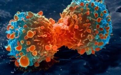 Brněnský objev má urychlit vyhledání rakoviny. Bude stačit pouhá kapka krve