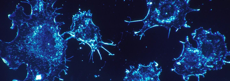 Brněnští vědci získali 100 milionů korun na vývoj látek s protinádorovým účinkem. Mohly by léčit rakovinu