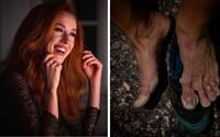 Bývalá moderátorka Fashion TV zdolala 110-kilometrovú ultra trail trasu. Takto vyzerali jej nohy po pretekoch