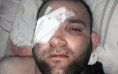Bývalý bojovník MMA prišiel pri zásahu ruskej polície o oko. Údajne znásilnil 13-ročné dievča