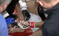 Bývalý olympionik přišel během MMA zápasu o prst. Sám si nepamatuje, jak se to stalo