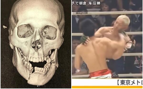 Bývalý UFC bojovník utrpěl děsivou zlomeninu čelisti. Na Instagramu ukázal snímky z rentgenu