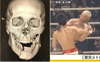 Bývalý UFC bojovník utrpel desivú zlomeninu čeľusti. Na Instagrame ukázal snímku z röntgenu