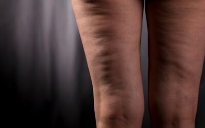 Celulitída: Nočná mora postihujúca viac ako 85 % žien, ktoré ju považujú za nechutnú chybu na ich tele