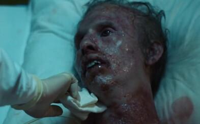 Černobyľská havária a jej obete, od ktorých mnohí diváci odvracali tvár