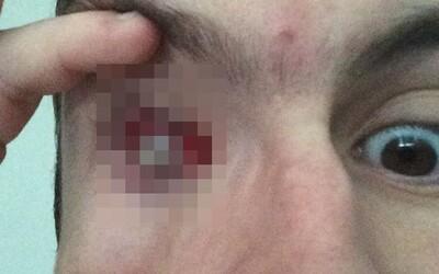 Chalan sa sprchoval so šošovkami, teraz je slepý na jedno oko. Dnu sa mu dostal parazit