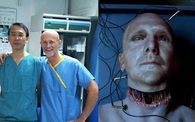 Chirurgové v Číně poprvé úspěšně transplantovali lidskou hlavu. Na mrtvém těle pospojovali míchu i nervy za 18 hodin