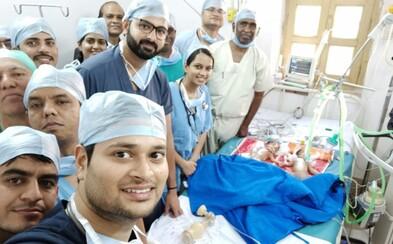 Chirurgovia oddelili spojené dvojičky úplne zadarmo, lebo rodičia si zákrok nemohli dovoliť