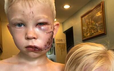 Chlapec zachránil život malé sestře během útoku psa. Skončil s 90 stehy na tváři, ale prý by to udělal znovu