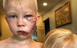 Chlapec zachránil život malej sestre počas útoku psa. Skončil s 90 stehmi na tvári, ale vraj by to urobil znova