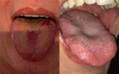 Co je covidový jazyk? Epidemilog popsal další příznak nákazy koronavirem