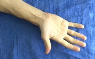 Čo všetko sa musí udiať, aby si mohol pohnúť prstom? Naše telo pozostáva z množstva zložitých mechanizmov